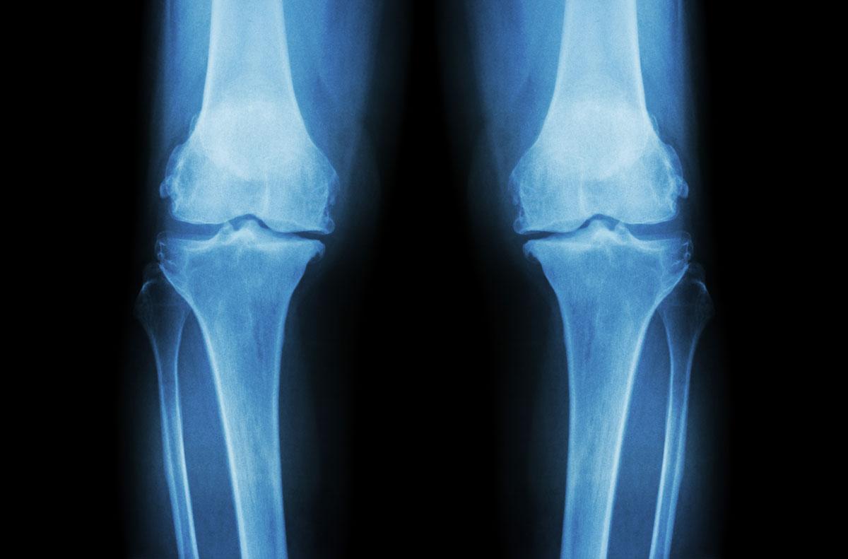 xray-knees