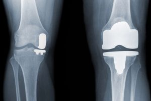 Partial Knee Replacement West Hills