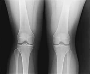 Knee Arthroscopy Surgery Before and After Photos