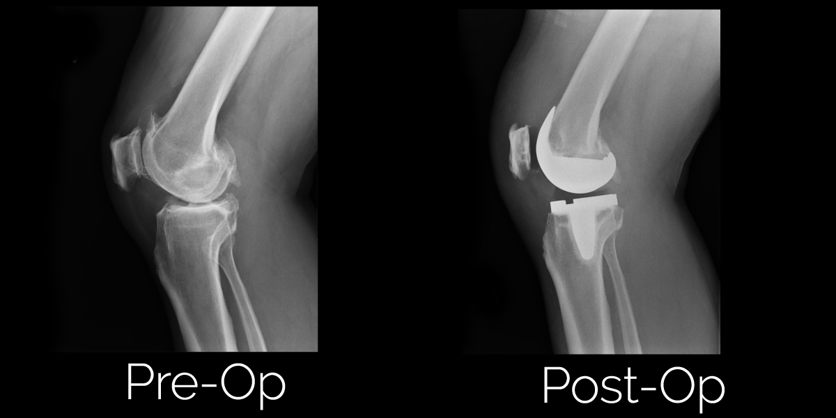 Total Knee Replacement Before and After Photos