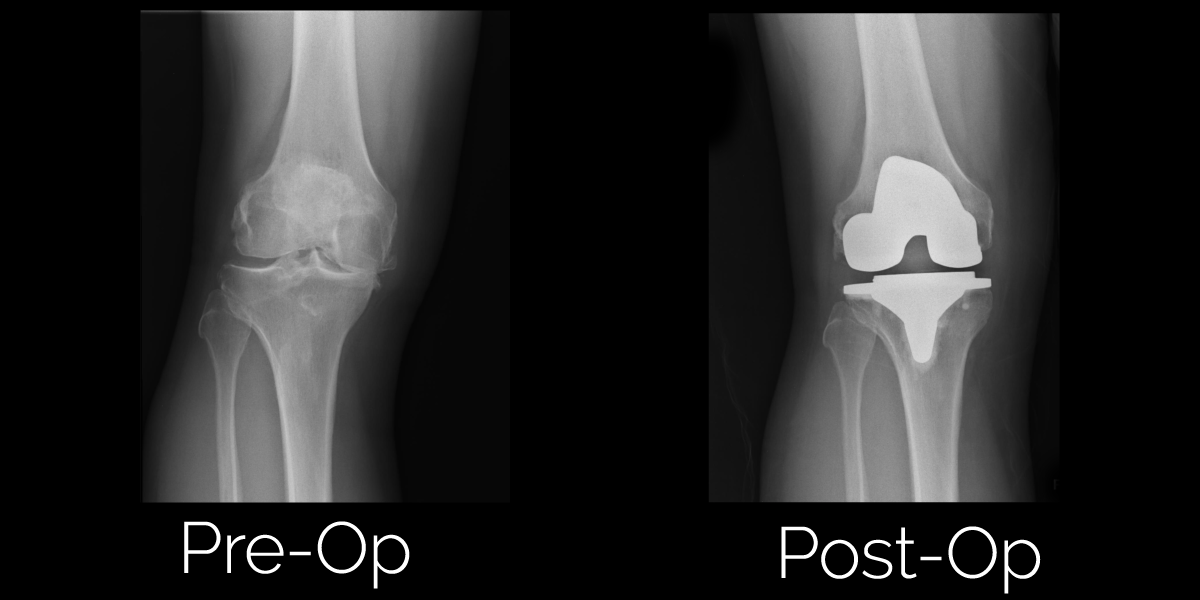 Total Knee Replacement Surgery Before and After Photos