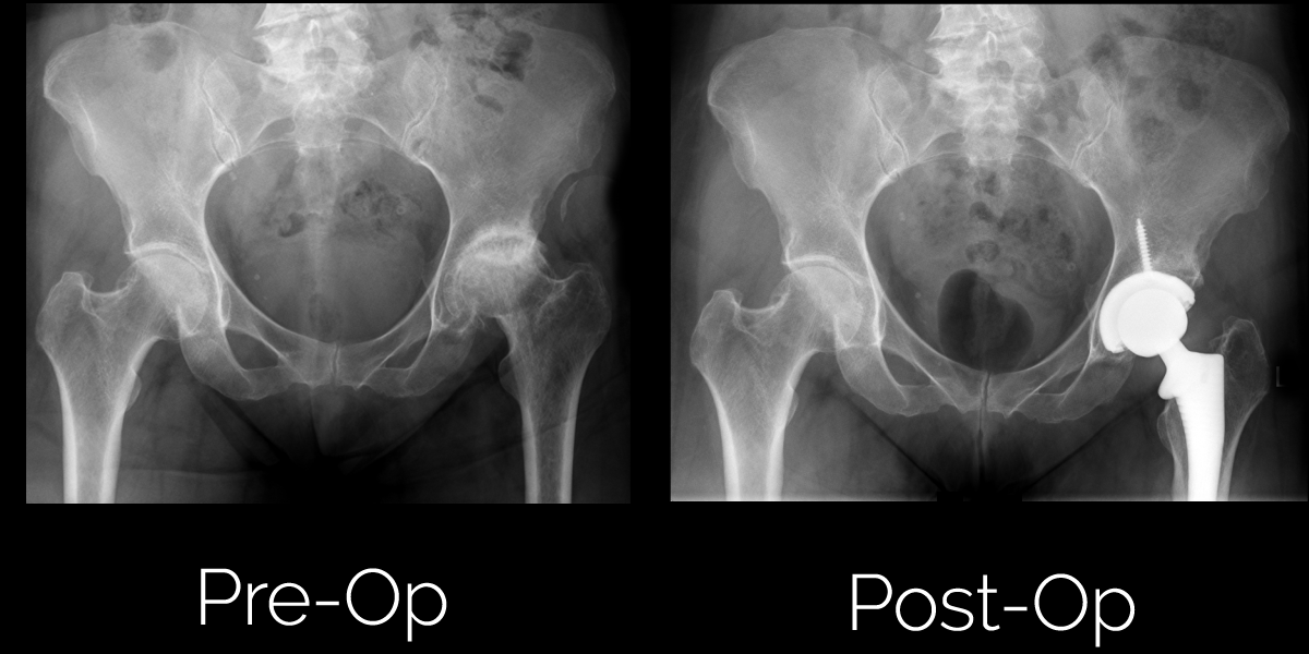Anterior Hip Replacement Surgery Before and After Photos