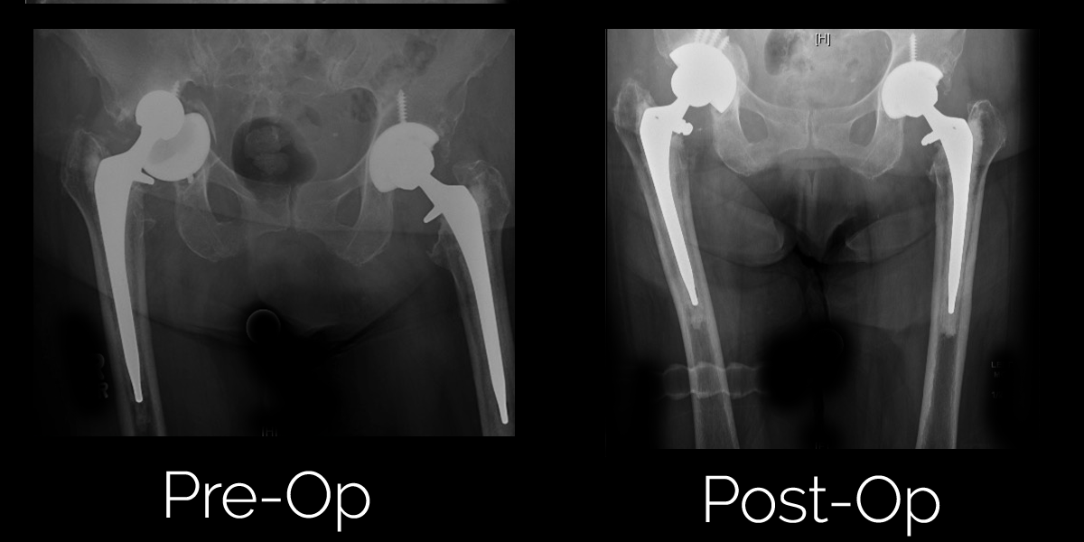 Hip Revision Surgery Before and After Photos