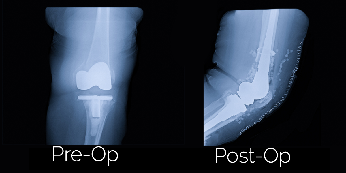 Total Knee Replacement Revision Before and After Photos